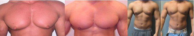 Cómo disminuir el tamaño de los senos masculinos con gynectrol de crazybulk
