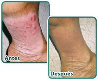 Testimonio antes después de la psoriasis en las piernas de un cliente de Francisco de Marco